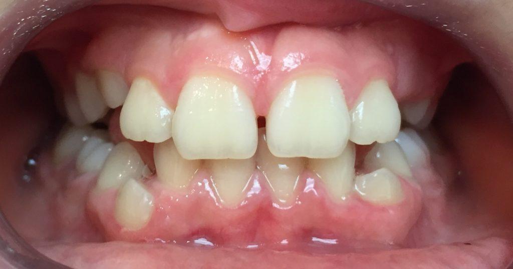 Avant le traitement orthodontie pour enfant