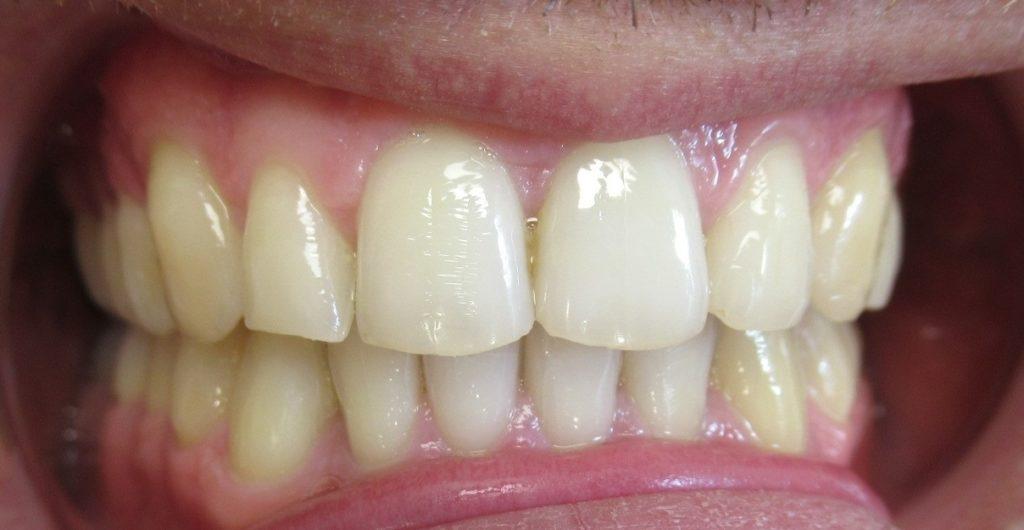 Traitement orthodontie adulte d'une supraclusion par aligneurs après