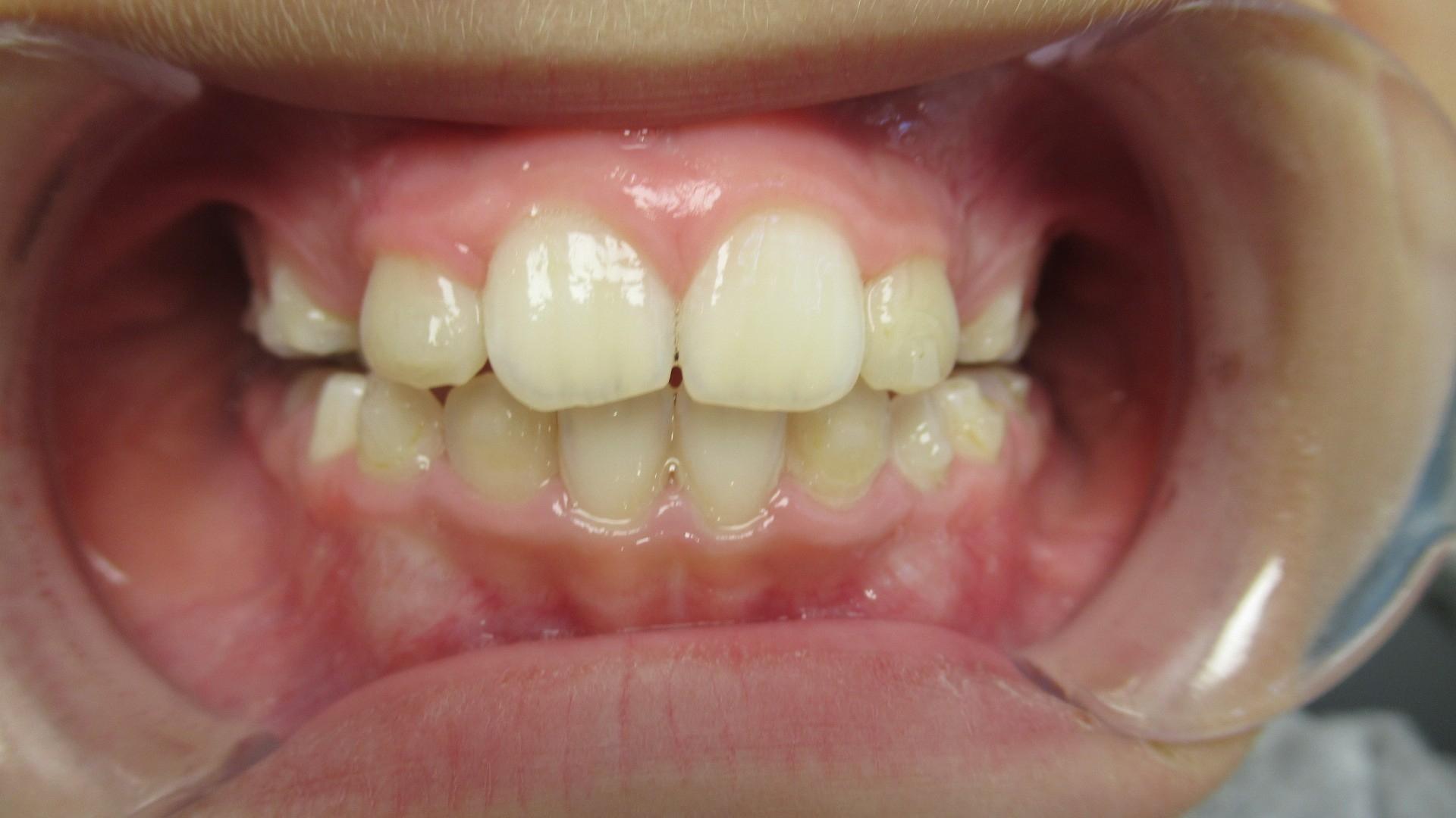 Invisalign orthodontie après First 6 mois d'aligneurs pour correction des axes