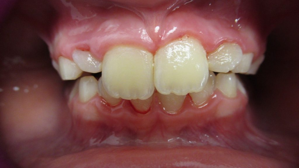 Orthodontie après 4 mois d'aligneurs pour correction inversé d'articulé antérieur