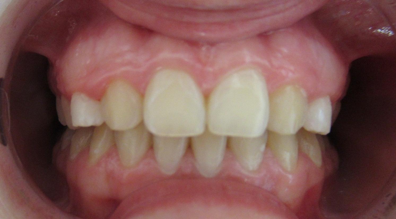 Agénésies des incisives latérales maxillaires apres