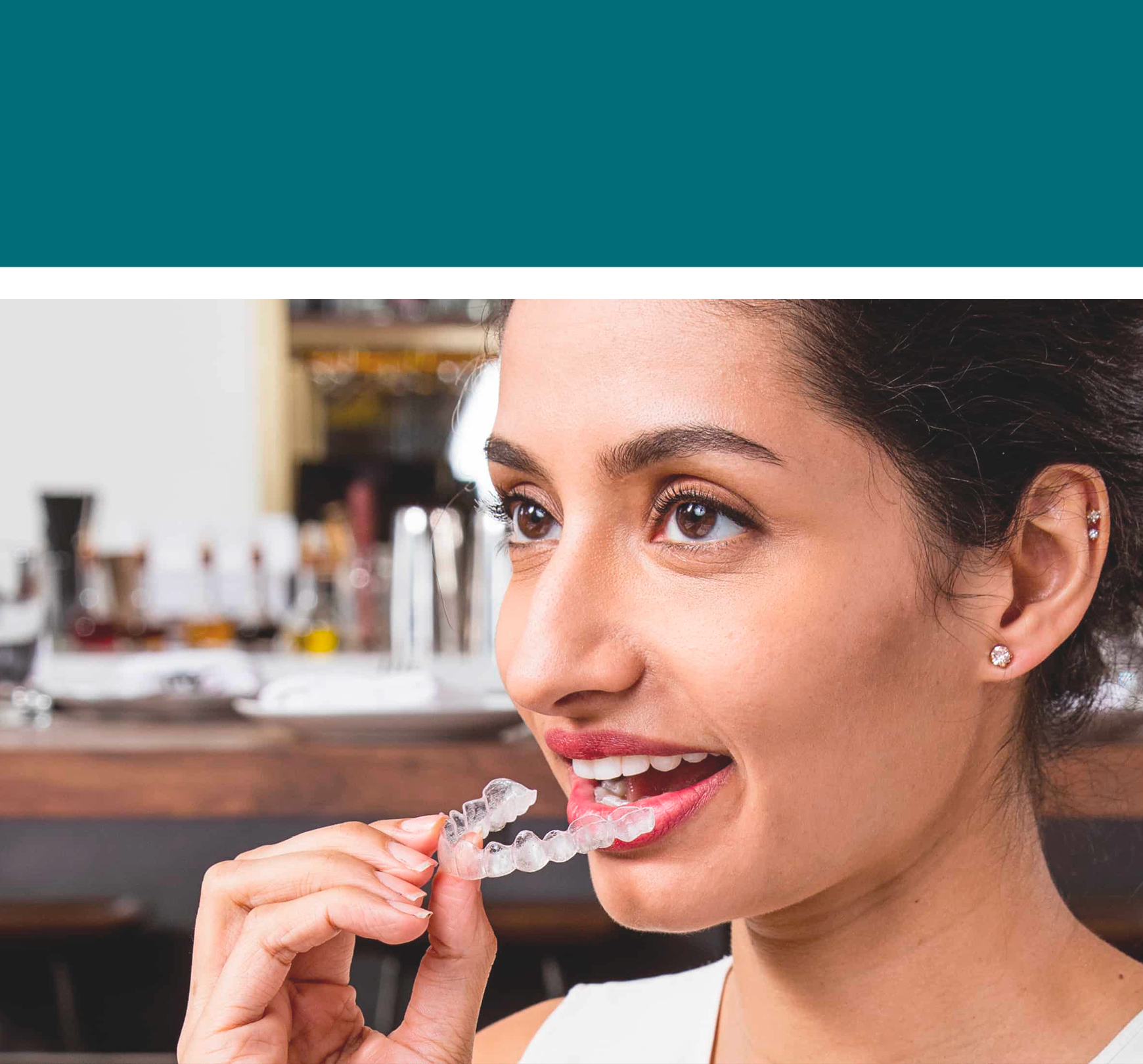 Orthodontie invisible à Paris 8 Invisalign
