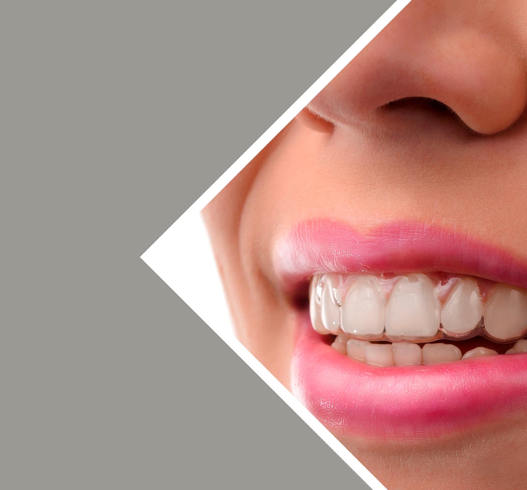 Le Dr Severin assure les soins orthodontiques Invisalign pour les adultes