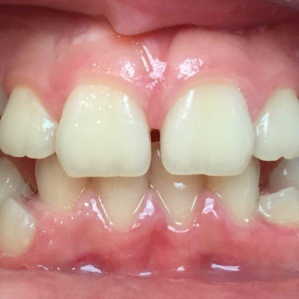 Avant le traitement orthodontie enfant