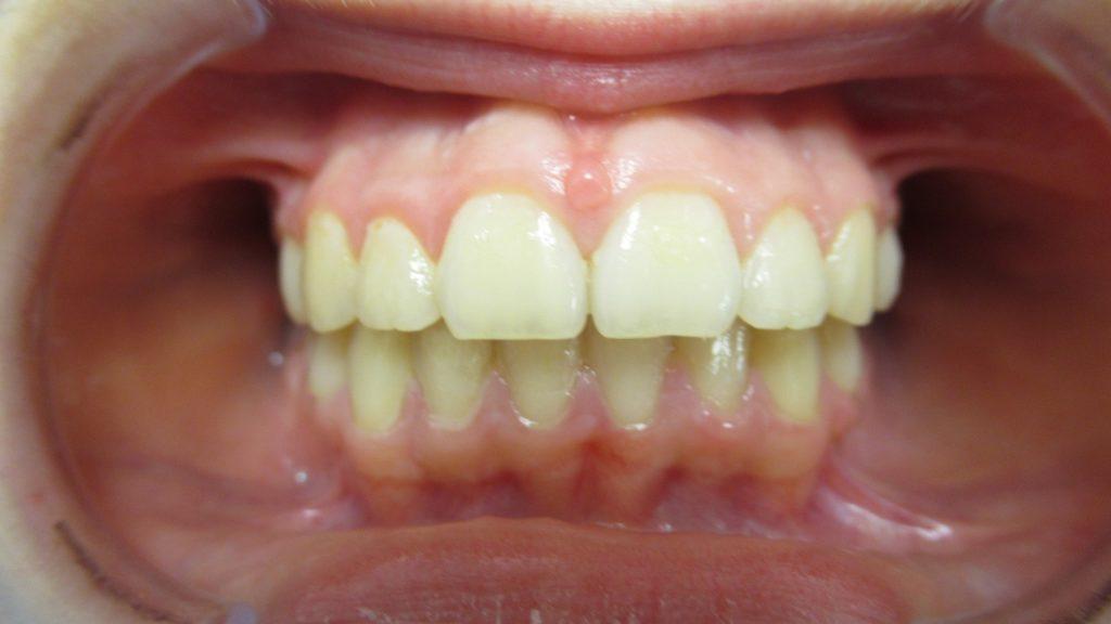Après le traitement orthodontie enfant