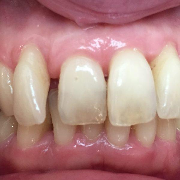 Avant le traitement orthodontie adulte