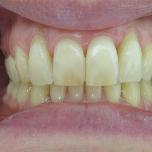 Après le traitement orthodontie pour adulte