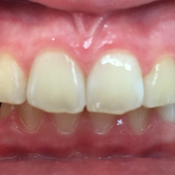 Traitement orthodontie par aligneurs Invisalign Teen Avant