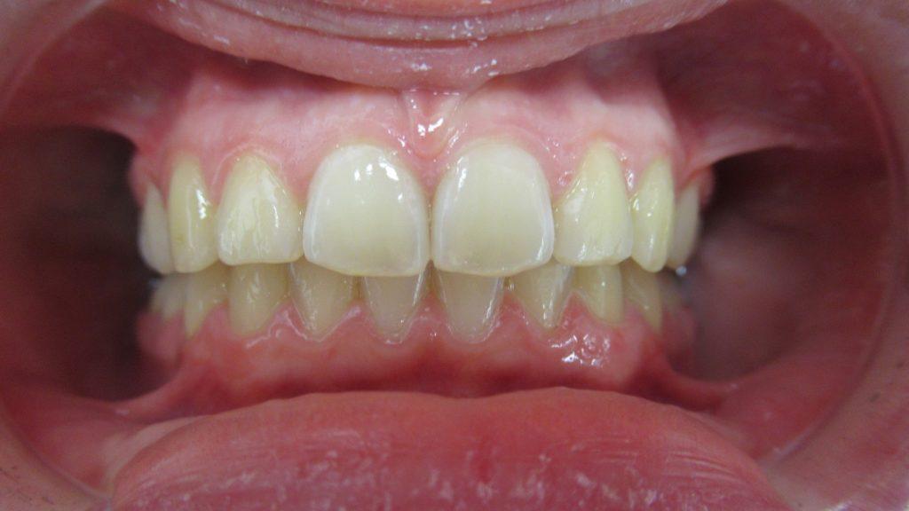 Après Traitement orthodontie par aligneurs Invisalign Teen