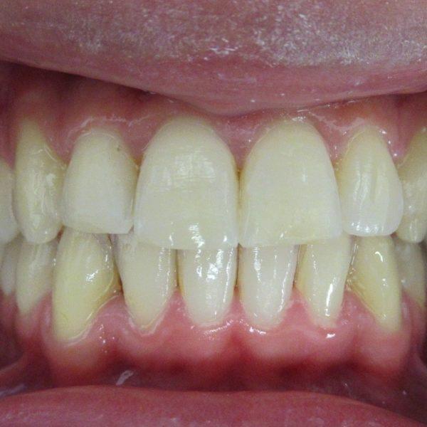 Après Correction orthodontie du plan d'occlusion