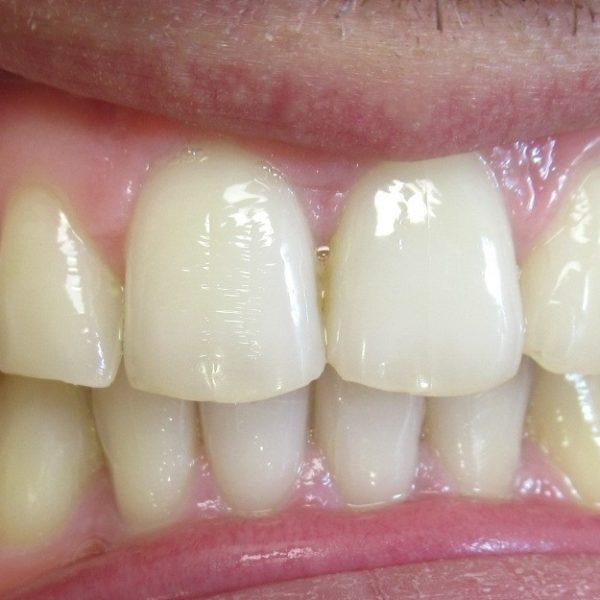 Après Traitement orthodontie adulte d'une supraclusion par aligneurs