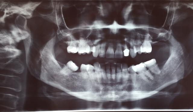 Radio pour un traitement en orthodontie avant