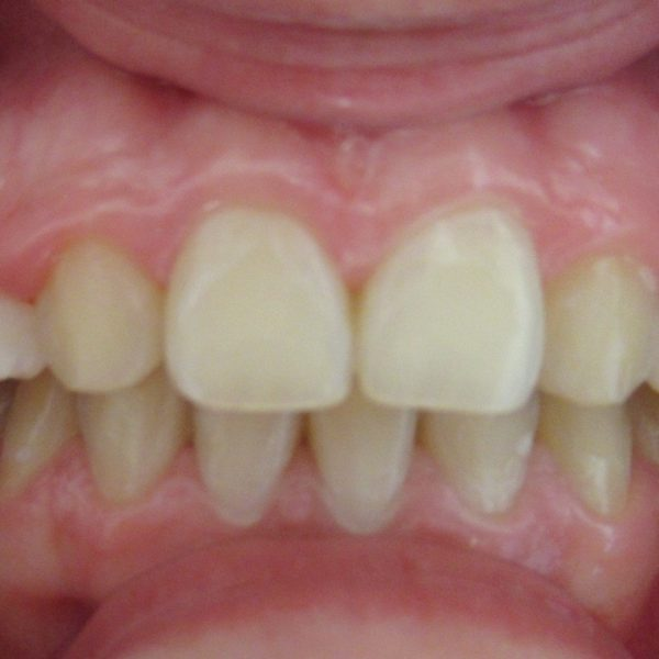 Après Agénésies des incisives latérales maxillaires