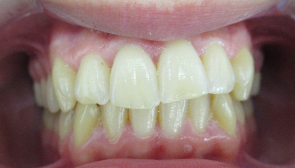 Orthodontie avant Correction du plan d'occlusion