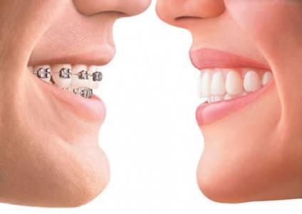 Les types de traitements orthodontiques